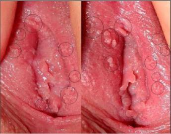 Penyakit Kutil Pada Kelamin Wanita